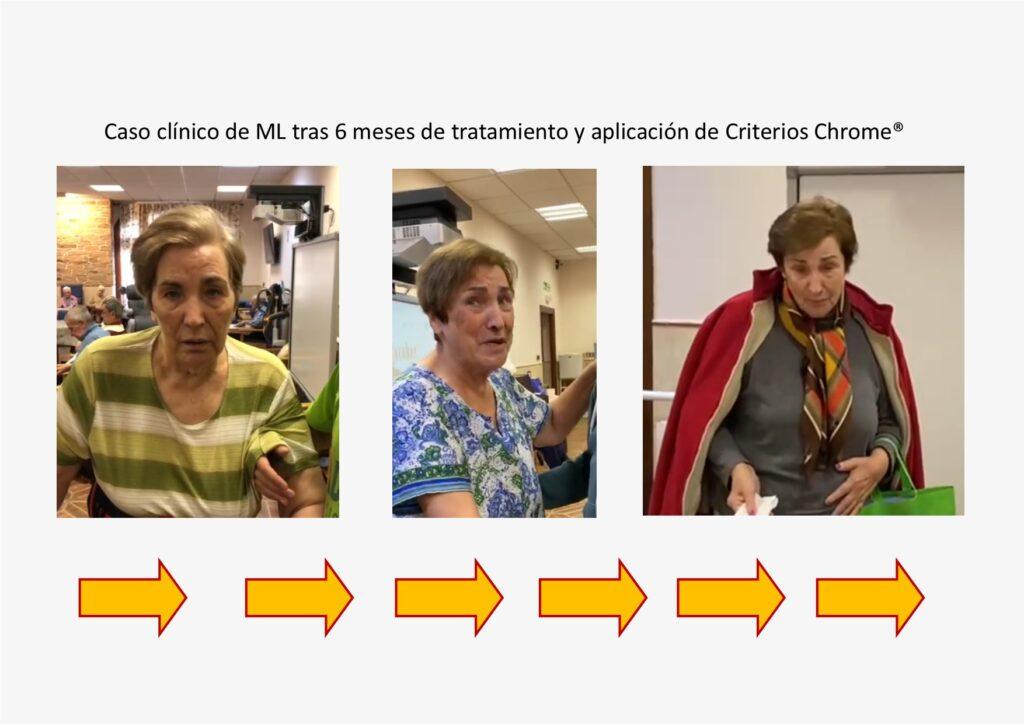 ML Caso clínico tras aplicación de Criterios Chrome